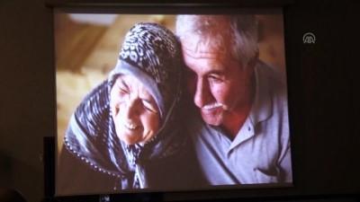 Romatoid Artrit Hastalığına Heykellerle Dikkati Çektiler