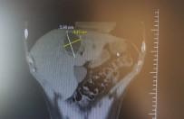 Karaciğerindeki Kistten 3 Saatlik Operasyonla Kurtuldu