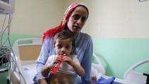 Çaydanlıktaki Kaynar Su Üzerine Dökülen Çocuk Yaralandı