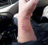 İZİNSİZ YÜRÜYÜŞ - HDP'li vekil polis memurunun kolunu ısırdı