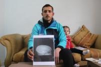 MUHALİFLER - Suriye'deki İç Savaşın Mağduru Kafasındaki Mermiyle Yaşam Mücadelesi Veriyor
