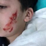 6. Sınıf Öğrencisi Kalemtıraş Bıçağıyla Arkadaşının Yüzünü Kesti