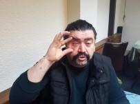 GURBETÇI - (Özel) Asker Uğurlamasında Terör Estiren Şahıslar Tartıştıkları Adamın Gözünü Çıkardı