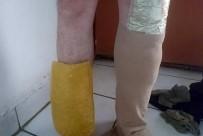 Bacağına Sarıp Gizlediği Esrarı 'Dalga' Buldu
