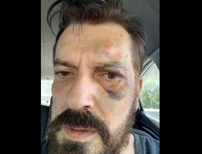 Hakan Bayrakçı'ya saldırı