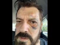 HAKAN BAYRAKÇı - Hakan Bayrakçı'ya saldırı