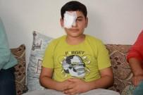 YARDIM ÇAĞRISI - Sol Gözünü Kaybetti, Yardım Gelmezse Sağ Gözünü De Kaybedecek