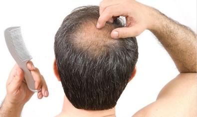 Erkeklerin Büyük Sorunu Saç Dökülmesi