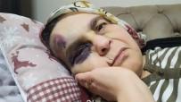 112 ACİL SERVİS - Şehir Zorbası Yaşlı Çifti Öldüresiyle Dövdü