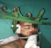 Antalya'da Gencin Yüzüne Saplanan Demir Çubuk Güçlükle Çıkarıldı