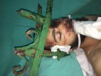 Gencin Yüzüne Saplanan Çubuk İçin Hastanedeki Operasyona İtfaiye Ekibi De Dahil Oldu