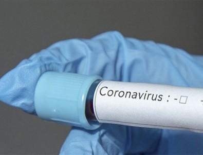 Çin'de yapılan çalışmadan korkutan sonuç: Koronavirüsün yeni belirtileri ortaya çıktı