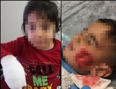 'Sokak köpeği' dehşeti: 6 küçük çocuğa saldırdı! Ölü ve yaralılar var