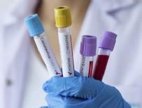 EYLEM PLANI - 6 üniversite aşı için seferber oldu