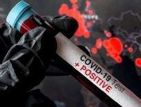 ÖLÜM RİSKİ - Koronavirüsten ölüm riskini 3 kat artırıyor!
