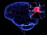 BEYİN KANAMASI - Uzmanlar uyardı! Beyin kanamasının ilk belirtisi...