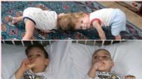 EMINE ERDOĞAN - Londra'da operasyonla ayrılan siyam ikizleri Türkiye'ye döndü
