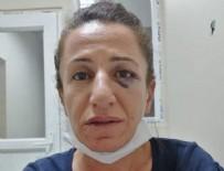 İL EMNİYET MÜDÜRLÜĞÜ - Diyarbakır Valiliğinden köpekle işkence iddiasına yalanlama: Söz konusu değildir