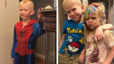 Dünya onu konuşuyor! 4 yaşındaki kardeşini korumak için araya girdi: 90 dikiş var...