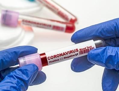 Sağlık Bakanı Fahrettin Koca 28 Ağustos koronavirüs vaka tablosunu paylaştı