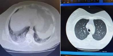 Koronalı hastanın röntgen görüntüsü şaşkına uğrattı!