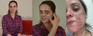 Lekelerden Kurtulmak İsterken Genç Kızın Yüzü Yandı!