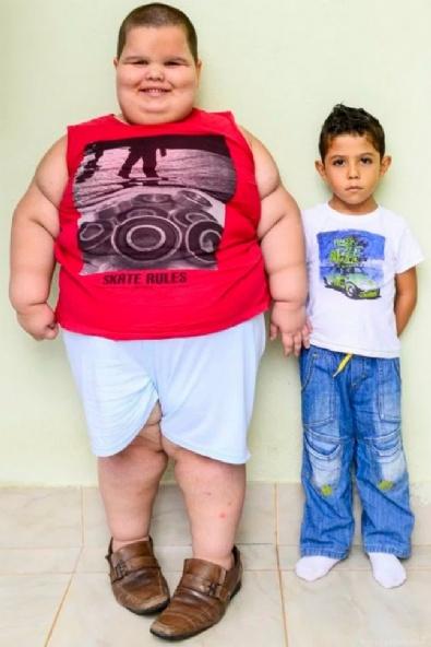 5 Yaşında Tam 80 Kilo