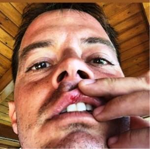 Alp Kırşan Tatilde Motosikletiyle Kaza Yaptı