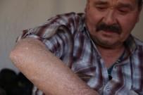 DINDAR - 'Balık Pulu' Hastalığı Vatandaşların Kabusu Oldu