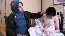 SARA NÖBETİ - Sara Nöbetinde Üzerine Kaynar Su Dökülen Epilepsi Hastası Genç Yaralandı