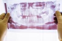 AĞIZ SAĞLIĞI - Dr. Öğr. Üyesi Ahmet Karaman 'Çene Eklem Rahatsızlığı En Çok Kadınları Etkiliyor'