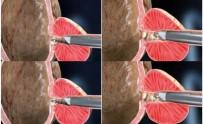 ELEKTRİK AKIMI - Prostat Tedavisinde 'Plazma Kinetik TUR Yöntemi' İle Başarılı Sonuçlar Alınıyor