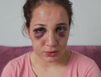 Boşanma aşamasındaki eşi, çocuklarının gözü önünde dövüp, saçlarını kesti