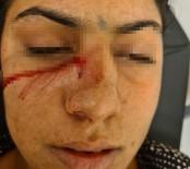 Kahvaltı Hazırlamayan Eşine Kafa Atıp Burnundan Bıçakladı