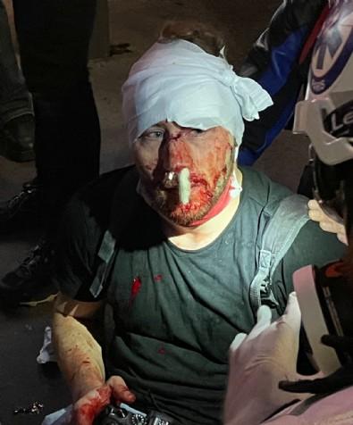 Genç gazeteci Suriye'deki savaşta almadığı darbeyi Fransa'da yaşadı! İnsan haklarından ahkam kesen 'Batı' neden sessiz?