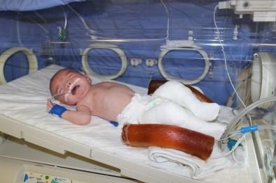 Kuzey Bebeğe Kuvözde Alçı Tedavisi