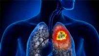 ANKSIYETE - Corona virüs salgınına karşı günde sadece 10 dakikalık egzersiz ile akciğerleri güçlendirmenin püf noktaları