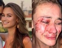 SUBAŞı - Top model Daria Kyryliuk'e plajda dayak! O mekandan açıklama geldi