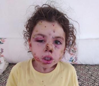 İzmir'de Yasak Dinlemeyen Magandalar 5 Yaşındaki Neriman'ı Silahla Yaraladı