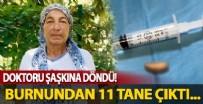 ANTALYA - Doktorları bile şaşkına çeviren vaka! 52 yaşındaki kadının sinüslerinden 11 tane....
