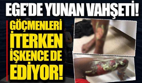 Yunanistan göçmenleri geri iterken işkence de ediyor: Vücutlarında kimyasala bağlı yanıklar var