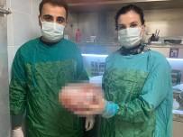 Karın Ağrısı Şikayeti İle Hastaneye Gitti, Karnından 5 Kiloluk Kitle Çıktı