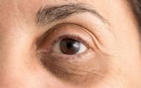 Göz Altı Morlukları Nasıl Geçer?  Göz Altı Morluklarını Geçiren Krem Tarifi Göz Altı Işık Dolgusu Fiyatı Ne Kadar?