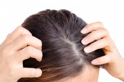 Saç Yağlanması Nasıl Önlenir? Saç Yağlanması Nasıl Geçer?