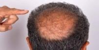 Saç Dökülmesi Tedavisi Nasıldır? Saç Dökülmesi Tedavisi Kimlere Uygulanır?