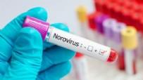 Nörovirüs Nedir? Nörovirüs Belirtileri Nelerdir?  Tedavisi Nasıldır?