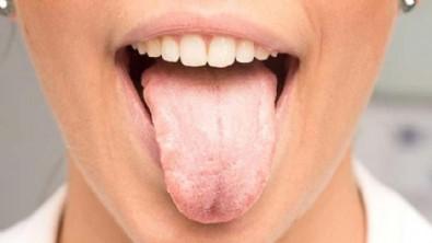 Dil Şişmesi Neden Olur? Dil Şişmesi Nasıl Engellenir?