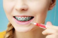 DİŞ TELİ TEMİZLİĞİ - Diş Teli Temizliği Nasıl Yapılır? Diş Teli Nasıl Fırçalanır?